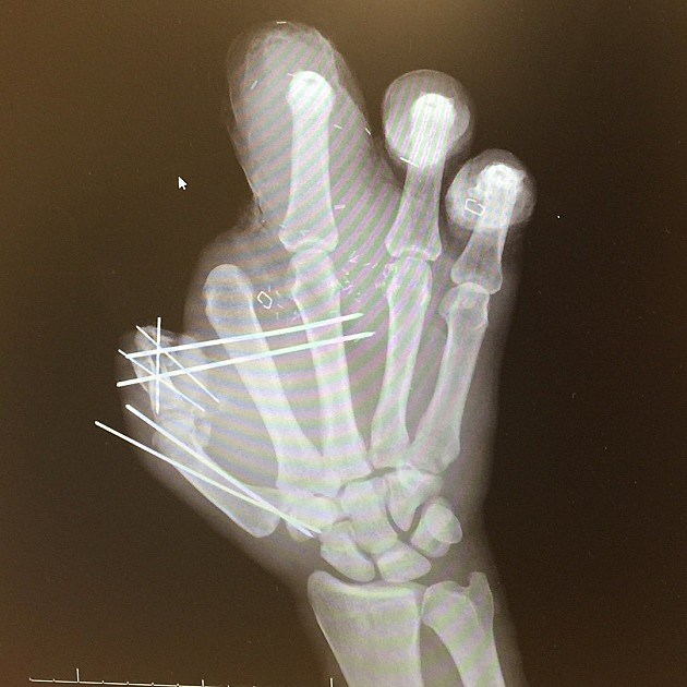 Jason Pierre-Paul Shows Off XRays Of His Mutilated Hand